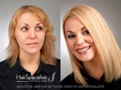 Beautiful Hair Replacement Transformation