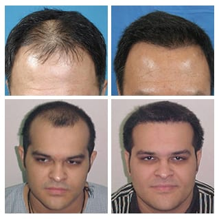 Hair-Transplant-Before-After-Males