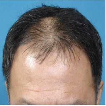 Picture of male pattern baldness