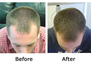 laser-hair-therap-before-after