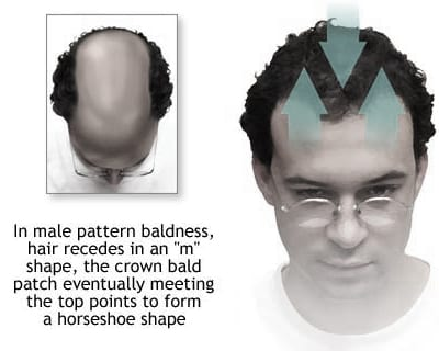 A Common Hair Loss Condition