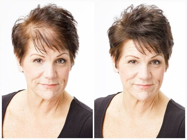 Women's Hair Loss Solutions at Hair Specialists