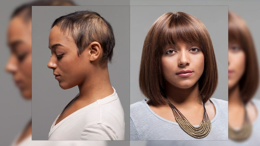 womens hair replacement