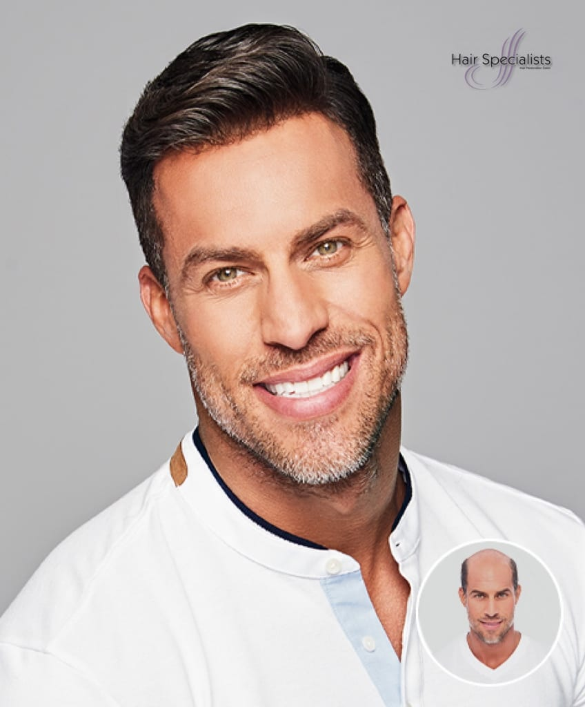 Men's Non-Surgical Hair Replacement from American Hairlines at Hair Specialist